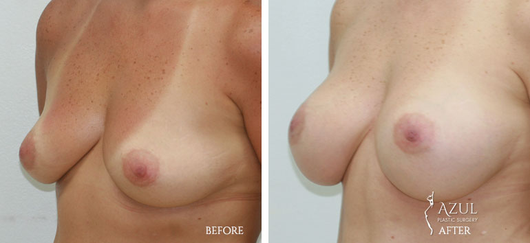 Houston Breast Implants patient #1b