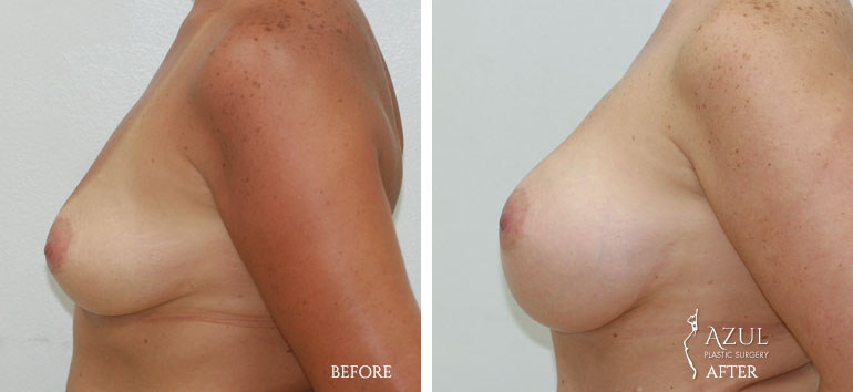Houston Breast Implants patient #1c