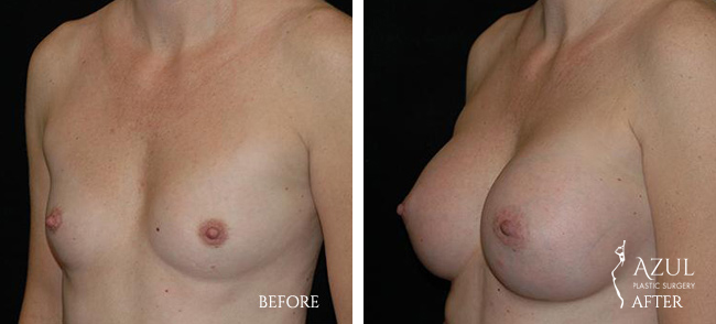 Houston Breast Implants patient #5a