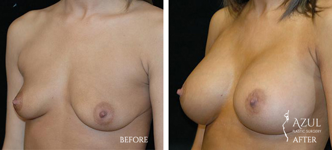 Houston Breast Implants patient #6