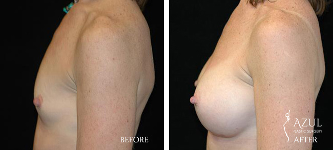 Houston Breast Implants patient #7b