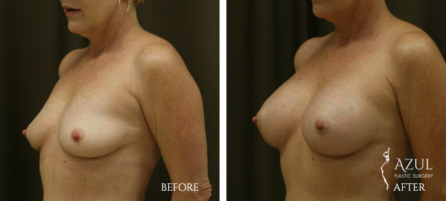Houston Breast Implants patient #8