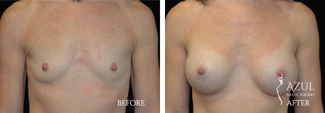 Houston Breast Implants patient #10a