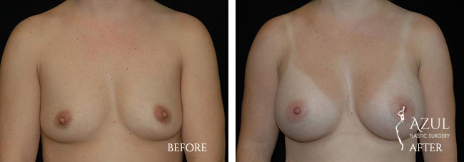 Houston Breast Implants patient #11a