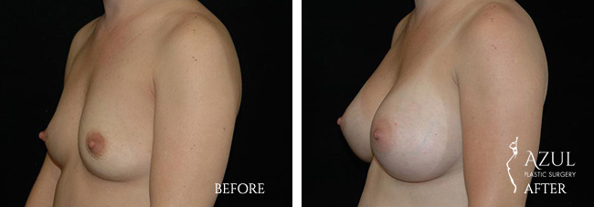 Houston Breast Implants patient #11b