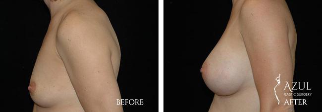 Houston Breast Implants patient #11c