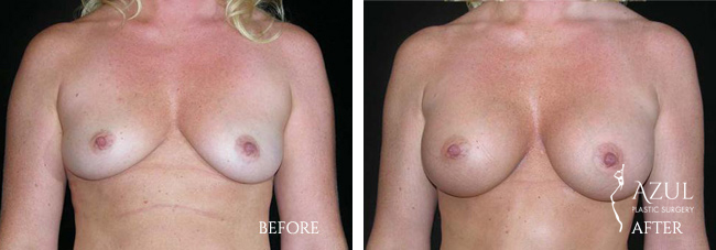 Houston Breast Implants patient #14