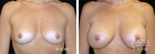Houston Breast Implants patient #15