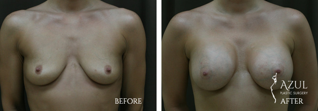 Houston Breast Implants patient #17