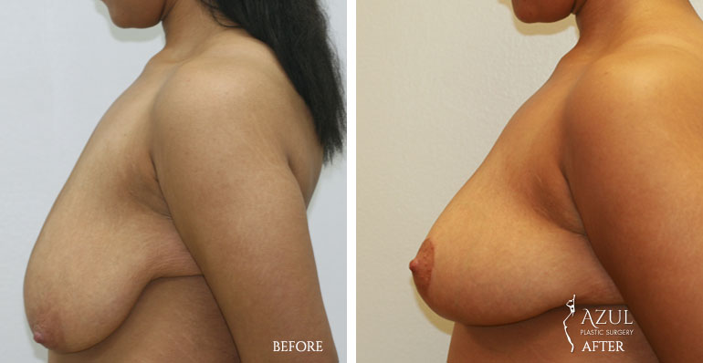 Houston Breast Lift patient #1