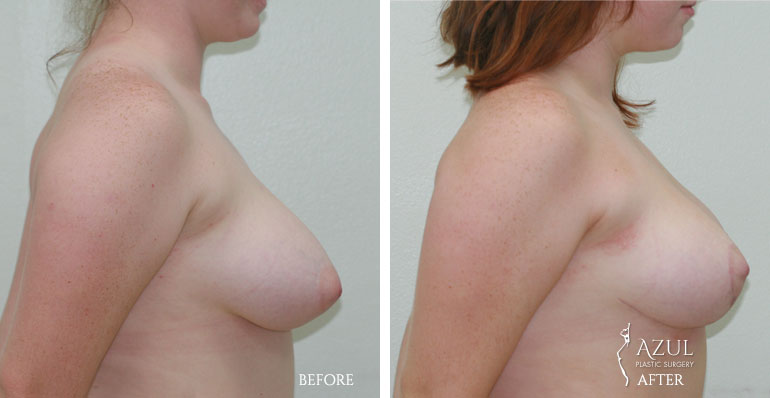 Houston Breast Lift patient #2