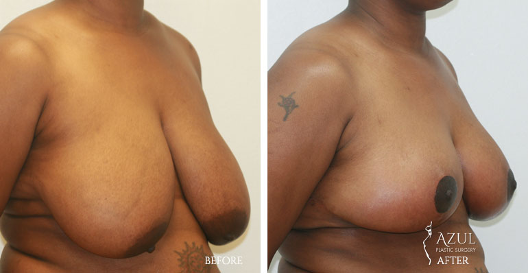 Houston Breast Lift patient #3a