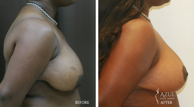 Houston Breast Lift patient #4a