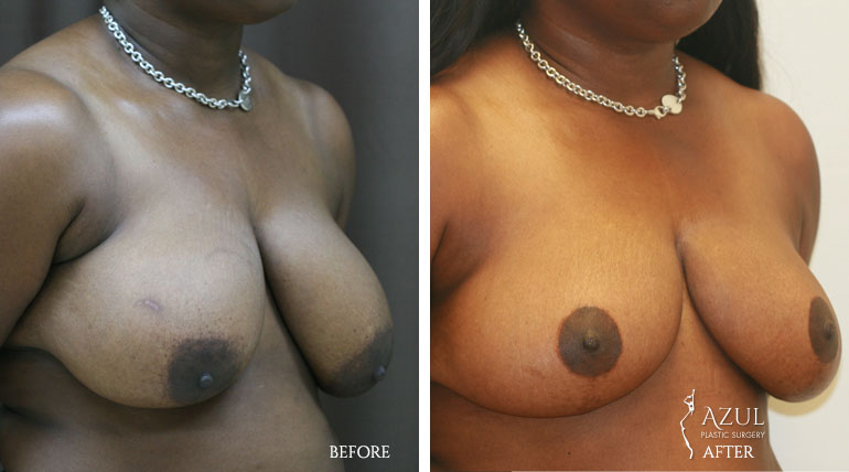 Houston Breast Lift patient #4b