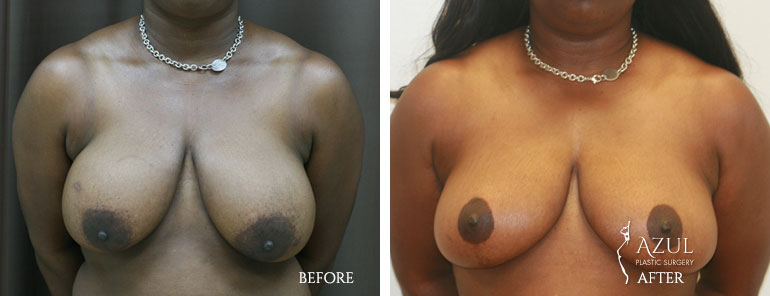 Houston Breast Lift patient #4c