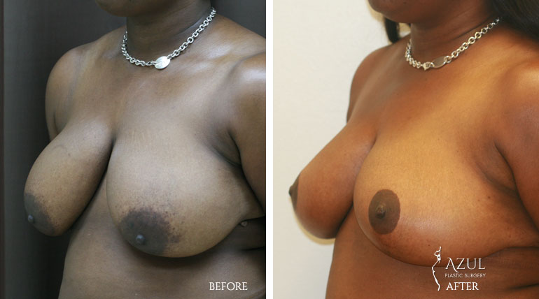 Houston Breast Lift patient #4d