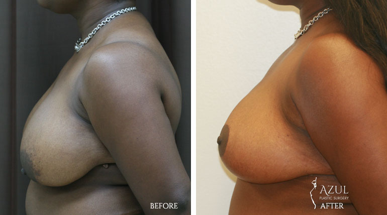 Houston Breast Lift patient #4e