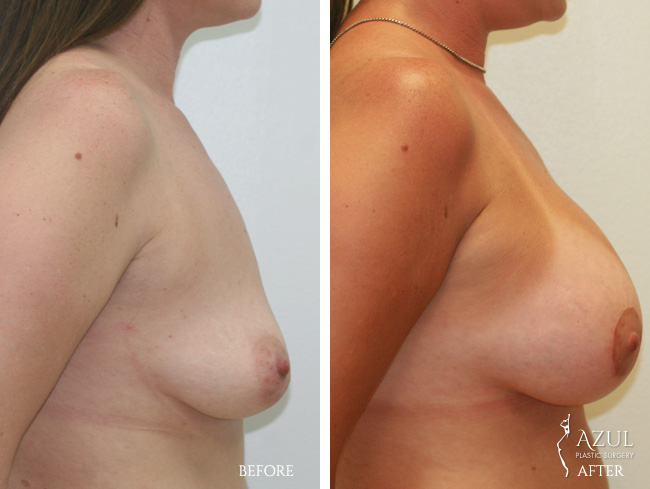 Houston Breast Lift patient #5