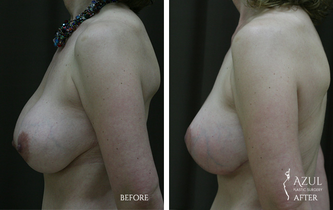 Houston Breast Lift patient #6