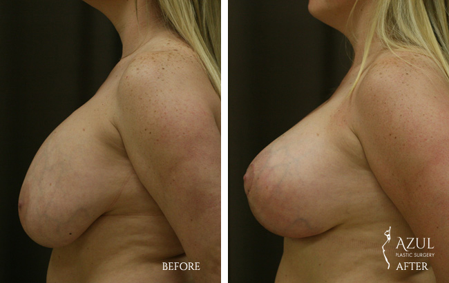 Houston Breast Lift patient #7