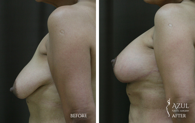 Houston Breast Lift patient #8