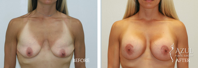 Houston Breast Lift patient #9