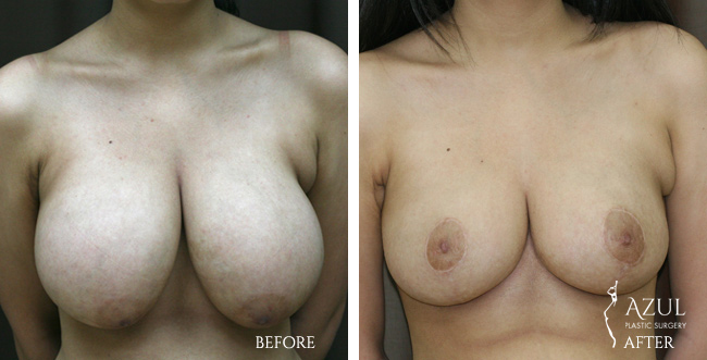 Houston Breast Reduction patient #2