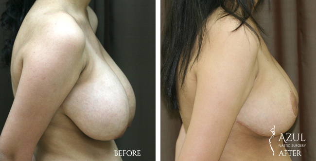 Houston Breast Reduction patient #3