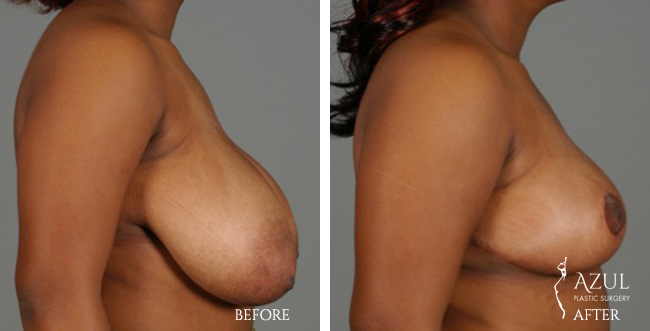 Houston Breast Reduction patient #4