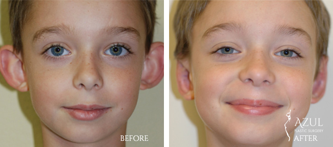 Houston otoplasty patient photo