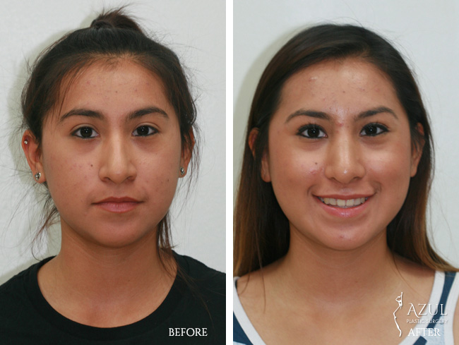 Houston Ethnic Rhinoplasty patient #1a
