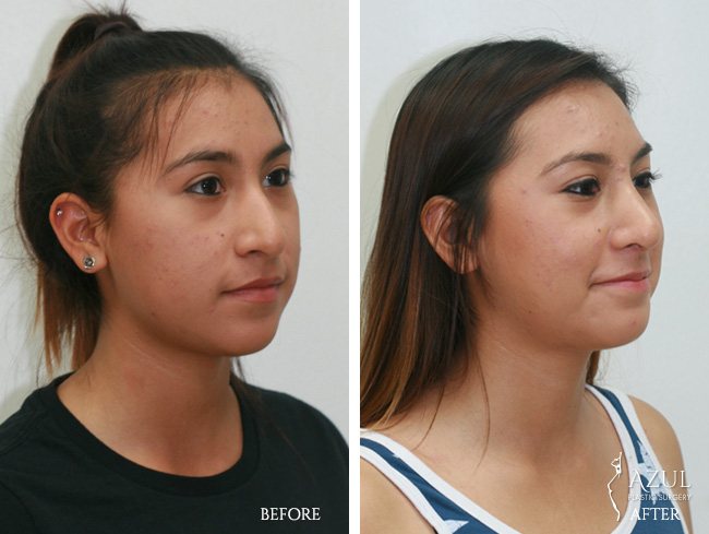 Houston Ethnic Rhinoplasty patient #1b