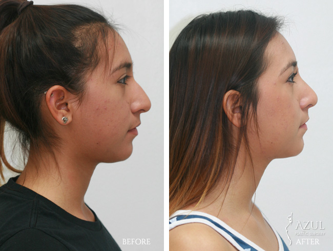 Houston Ethnic Rhinoplasty patient #1c