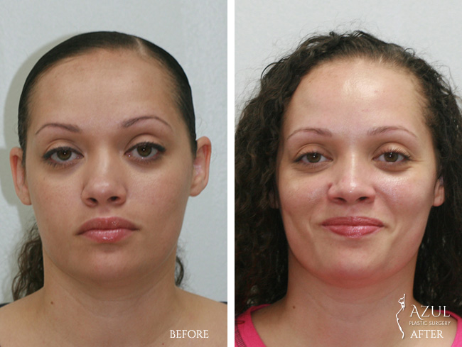 Houston Ethnic Rhinoplasty patient #3