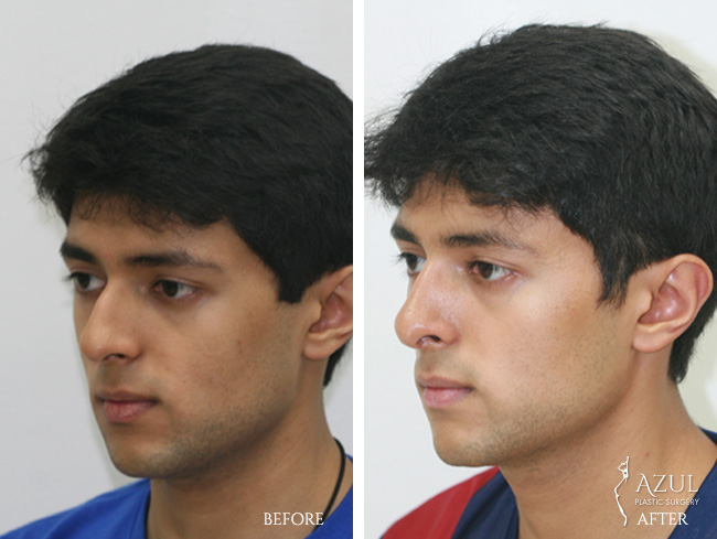 Houston Ethnic Rhinoplasty male patient #4b