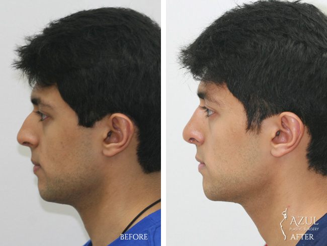 Houston Ethnic Rhinoplasty male patient #4c