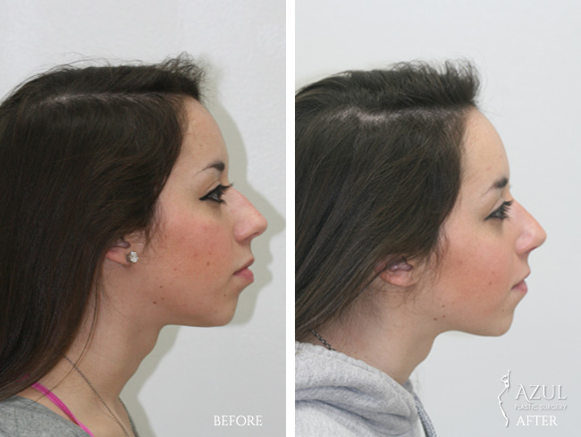 Houston Ethnic Rhinoplasty patient #5b