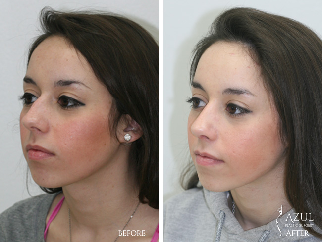 Houston Ethnic Rhinoplasty patient #5d