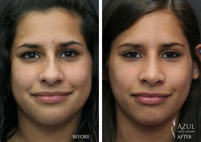 Houston Ethnic Rhinoplasty patient #6a