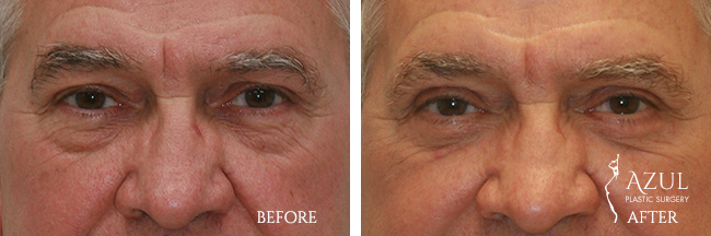 Eyelid Lift surgery Houston #1 photo