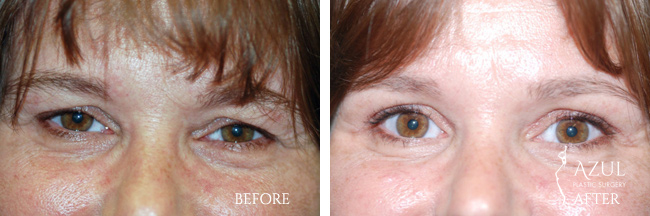 Blepharoplasty surgery Houston #2