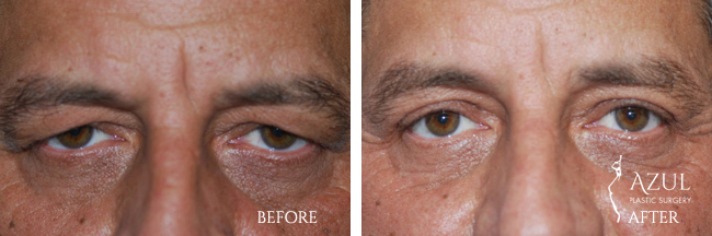 Eyelid surgery Houston #5
