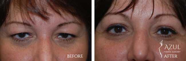 Blepharoplasty surgery patient photo #4
