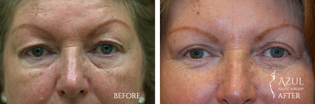 Blepharoplasty surgery Houston #5