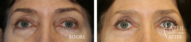 Eyelid Lift surgery Houston #6