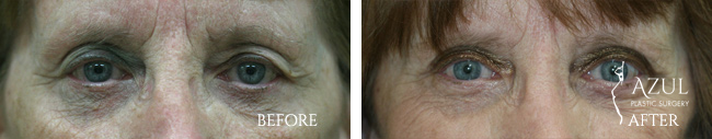 Eyelid surgery Houston #7
