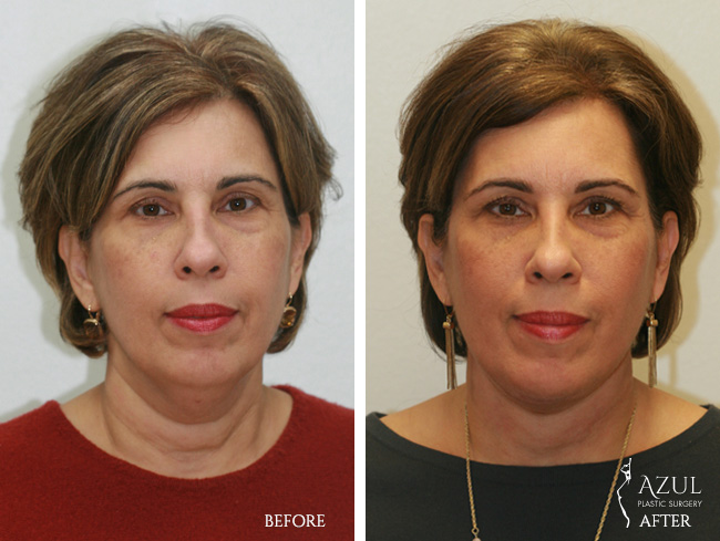 Houston Facelift plastic surgery patient #1