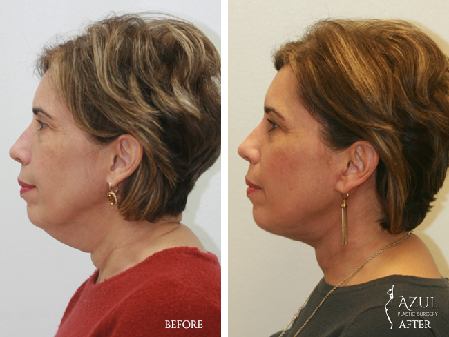 Houston Facelift plastic surgery patient #1b