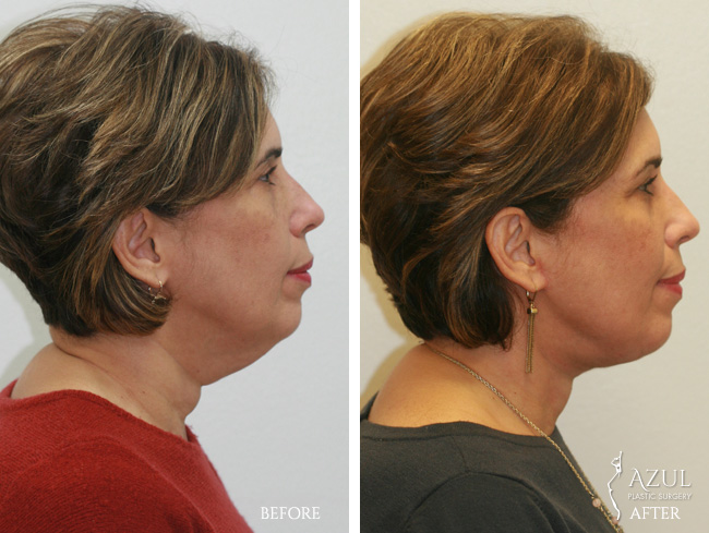 Houston Facelift plastic surgery patient #1e