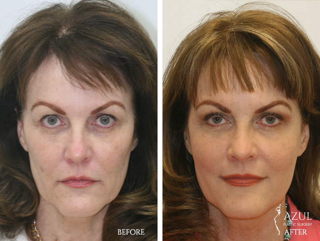 Houston Facelift plastic surgery patient #2